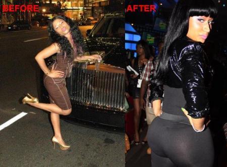 Nicki Minaj Before and After Surgery