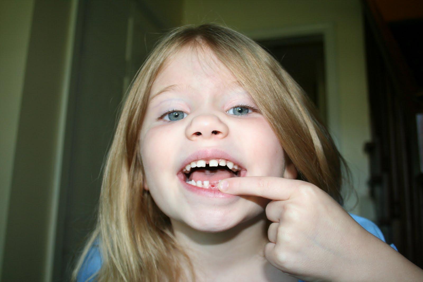 Как вырвать зуб без боли в домашних условиях 11