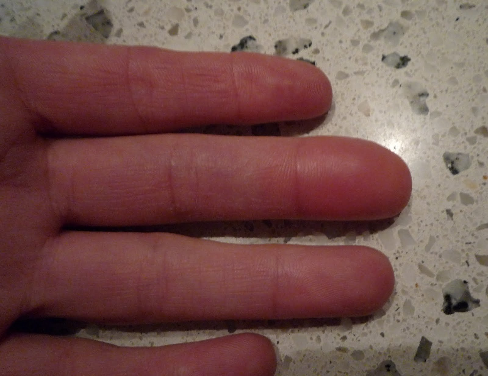 feit aan vinger