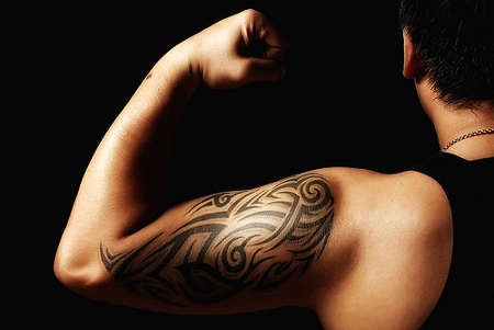 Tribal Design Tattoos- Tattoo Removal