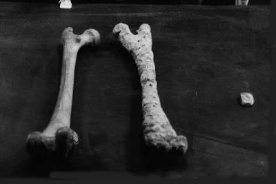 Huesos en el Mar Rojo