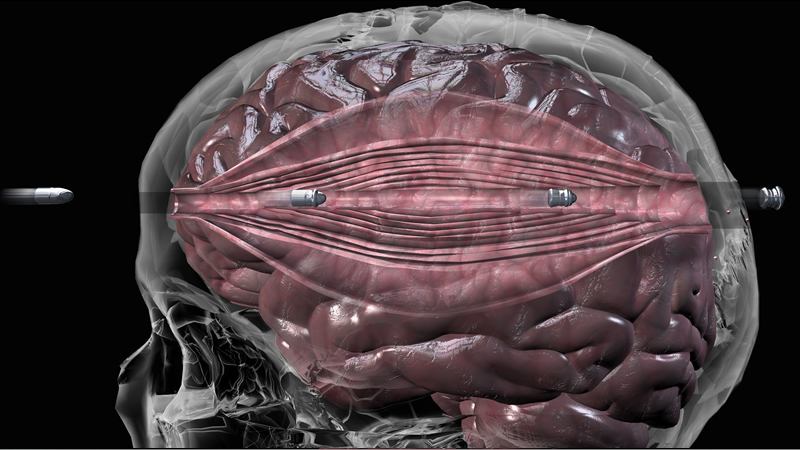 a bullet in the brain A person's chances of surviving a bullet wound to the brain depend on the areas of the brain that are struck, the velocity of the bullet and whether the bullet exits the brain.