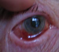 malignt melanom i øjet