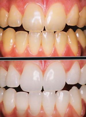 Sorridente Professora De Odontologia Alerta Clareamento Dental So