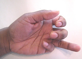 Ring Finger Swelling At Night
