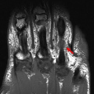 Annular Tear Mri Natural History