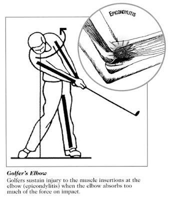 Golfer's elbow is pain and