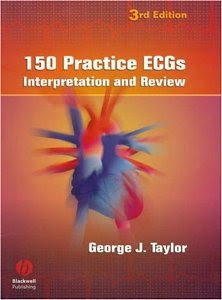 150 Practice ECGs. Interpretation and Review. 3rd Ed.