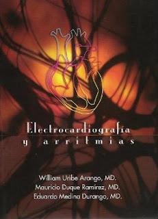 Electrocardiografia y Arritmias
