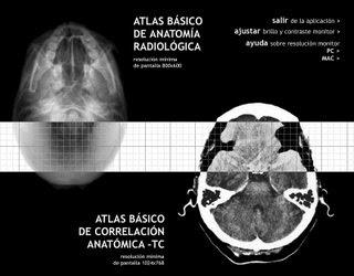 Atlas Correlacion Anatomia -- Rx -- TAC