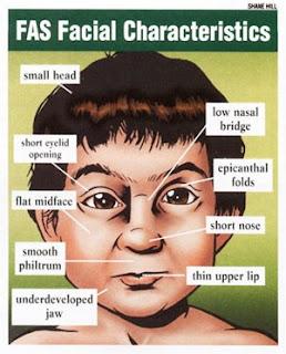 dimorfismo facial