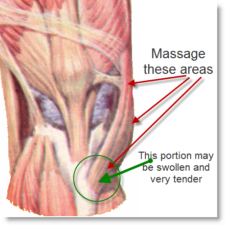 [Massage+Biceps+Femoris+Insertion.png]