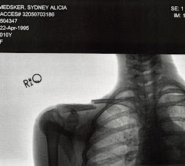 My beautiful X-ray
