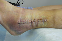 Click for Larger Image of One Incision With Staples