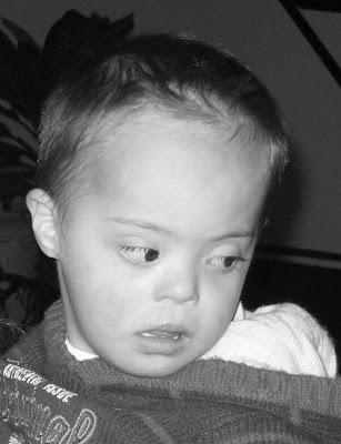 Tränen drücken nicht notwendigerweise Schmerz aus, Behinderung, Down-Syndrom, Maximilian, Mexiko, Fotos, storytellers,