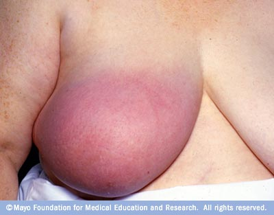 As the cancer grows, symptoms may include: Breast lump or lump