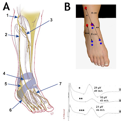 Electroneuromyographie nerf fibulaire for Douleur interieur pied droit