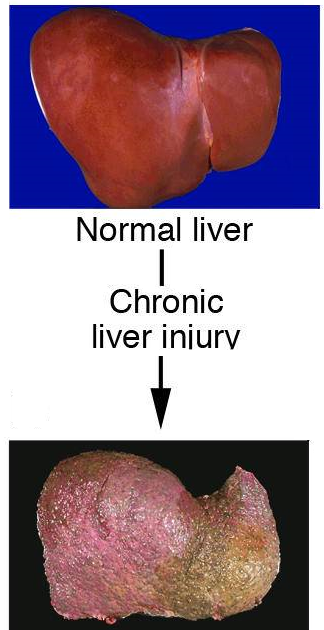 Entropy Production: Synthesis of Fat in the Liver