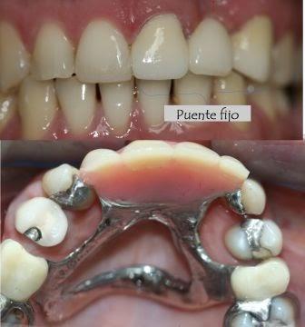 Tratamientos dentales qu me conviene m s un puente fijo for W de porter ortodoncia