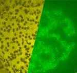Autoimmune Disease - Wellsphere