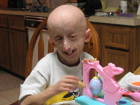 The children affected by Progeria are mentally in par with the normal