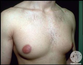 O aumento em um peito possui a gordura do preço