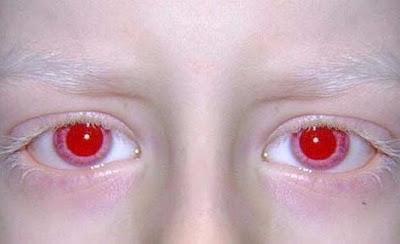 röda ögon foto