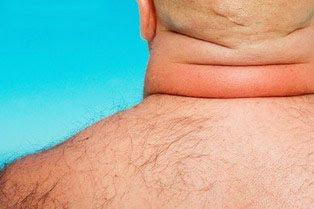 写真:太い首