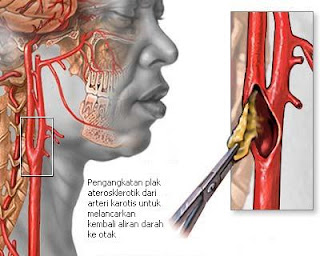 Enarterektomi