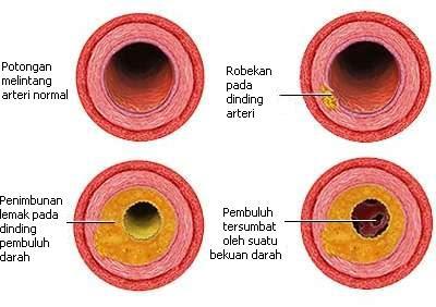 Plak & bekuan darah