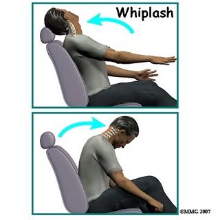 cedera leher (whiplash)
