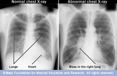 Healthy Lungs X-ray Chest