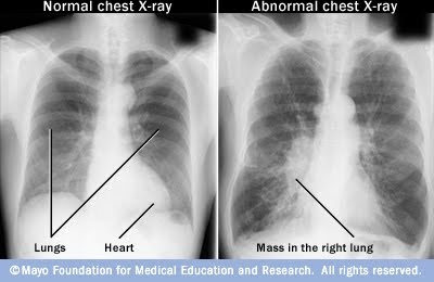an analysis of the characteristics of emphysema a lung condition Purpose we have little knowledge about the evolution of emphysema, and relatively little is understood about its evolution in relation to smoking habits this study.