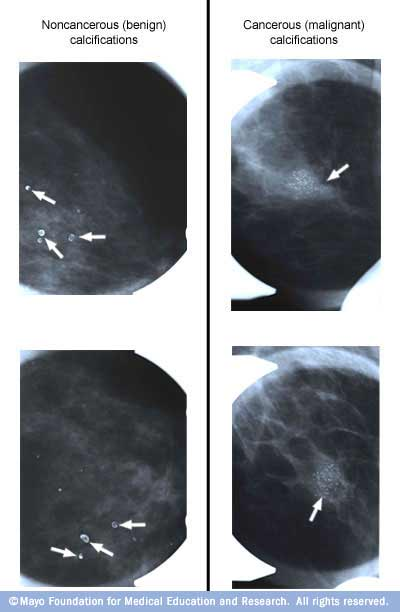 Calcium Deposits In Breast Causes: Breast Calcification