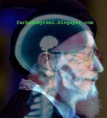عکس رادیولوژی از سر رهبر