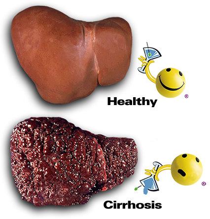 external image cirrhosis1.jpg