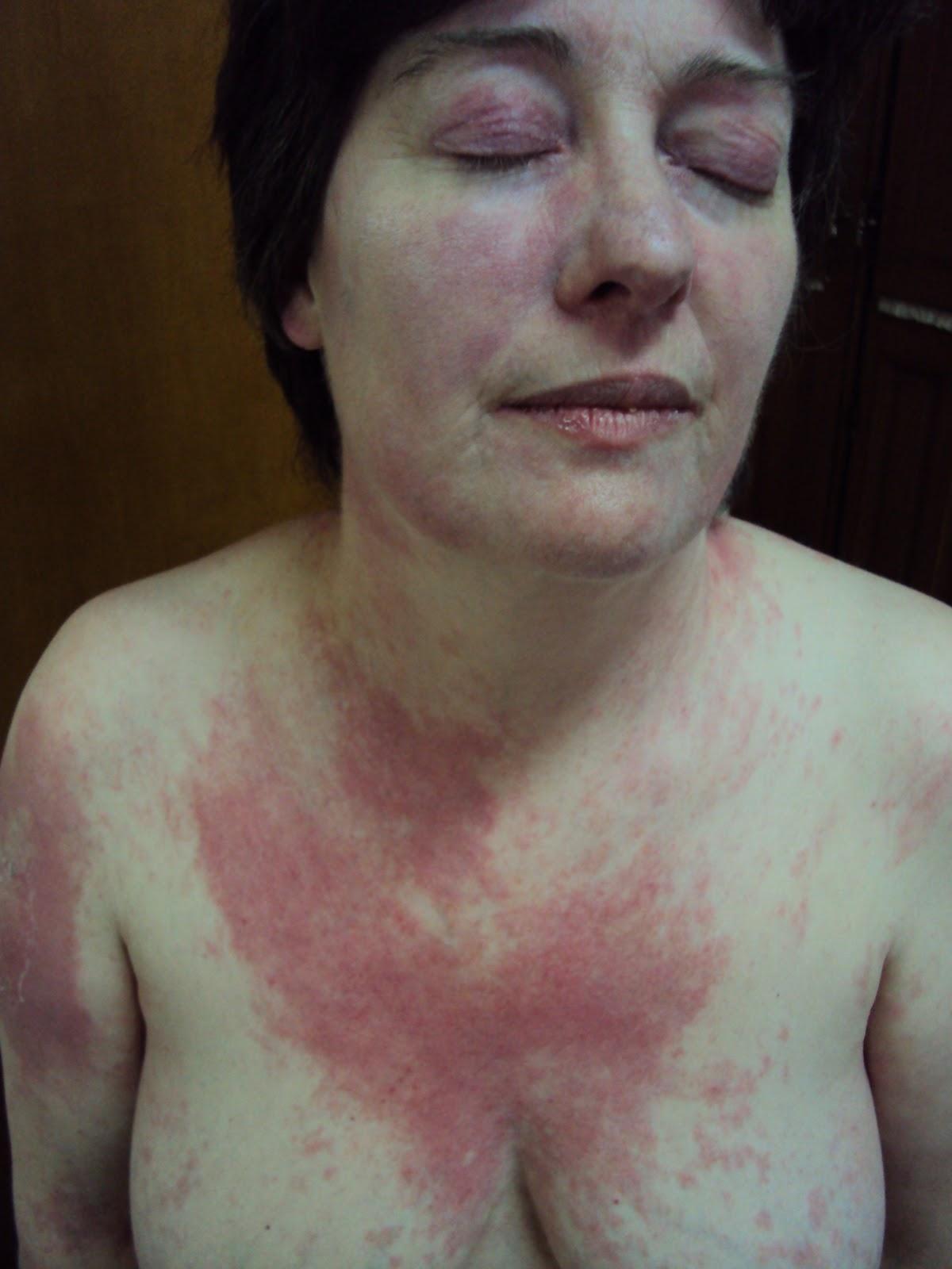 miopatia esteroidea cpk