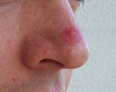 Pimples or red skin around nose spray with nasal decongestant to