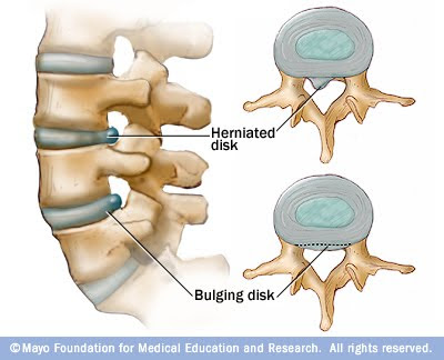HNP Herniated Nucleus Pulposus