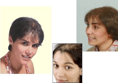La transplantation des cheveu à moskve le bas prix laction