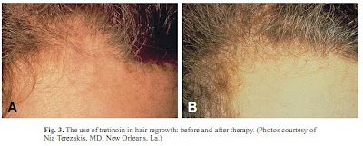 Tretinoin and hair growth