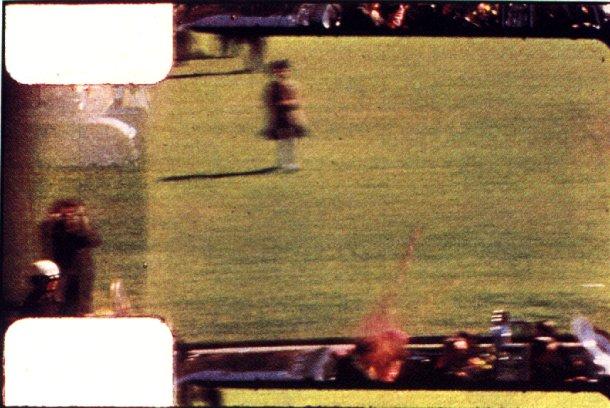 Kennedy Assassination Autopsy Pics