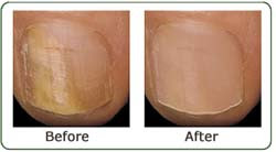 Nail Fungus - A Natural Cure