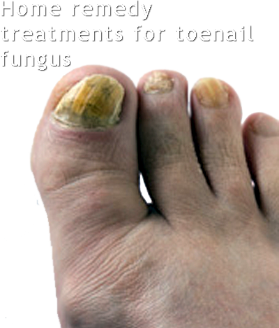 Green fungal nail infection