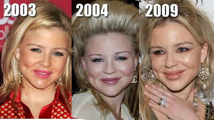 Perfect Julie Benz Plastic Surgery
