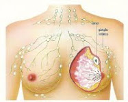 Campanha da Mamografia Digital Gratuita
