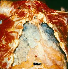 pulmones afectados