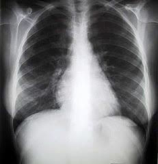 Una Radiografia de torax