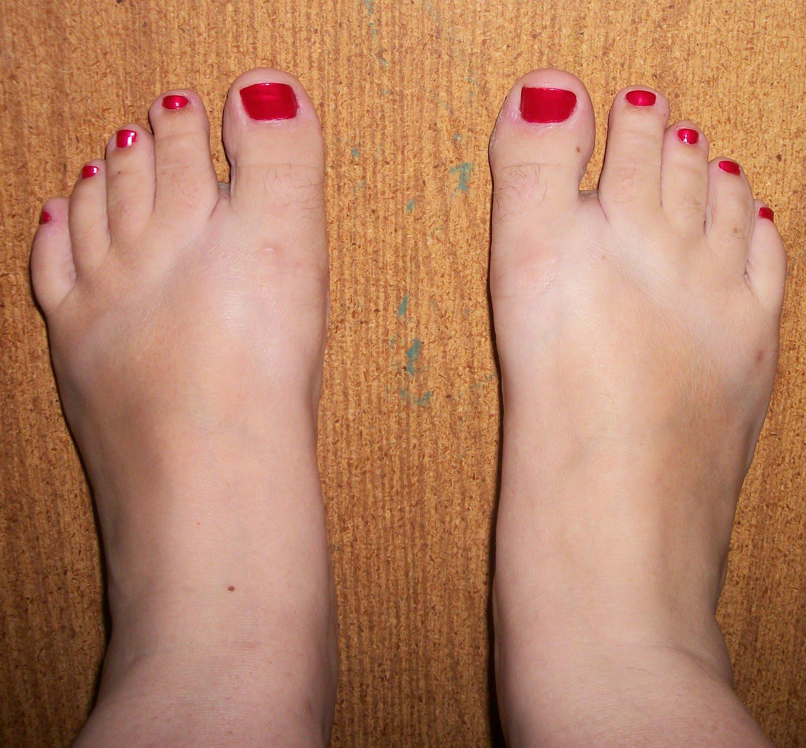 square toes   walkwellstaywell