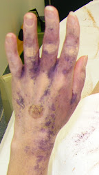 Starch test after Sympathectomy (T2 cut). return of palmar hyperhidrosis 6 months after surgery